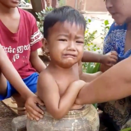 Khmer Toddler Trapped in a Pot